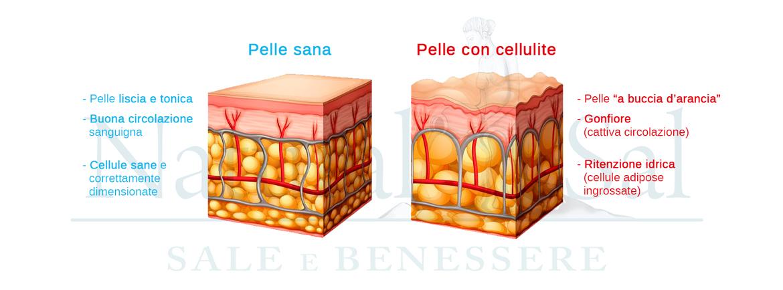 cellulite-3.jpg